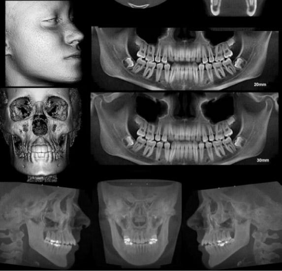 Tomografia cone beam