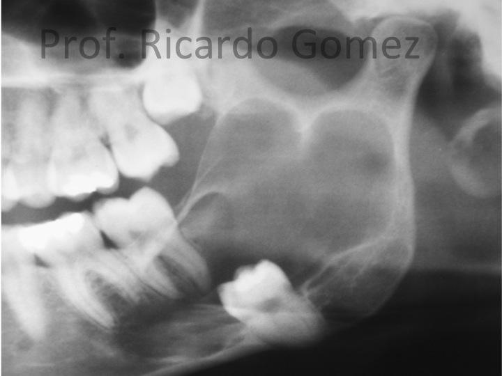 Ameloblastoma unicístico