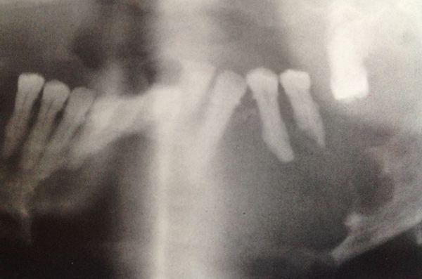 Carcinoma ameloblástico