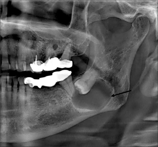 Ceratocisto odontogênico