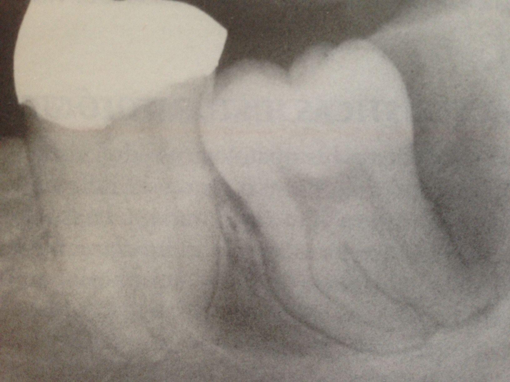 Cisto dentígero circunferencial