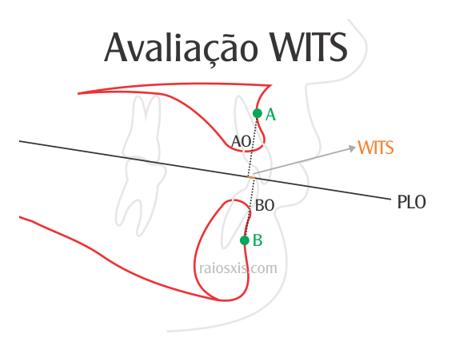 Avaliação WITS