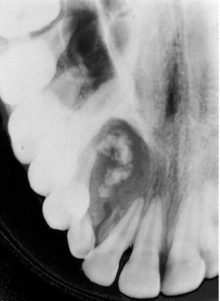 Cisto odontogênico calcificante