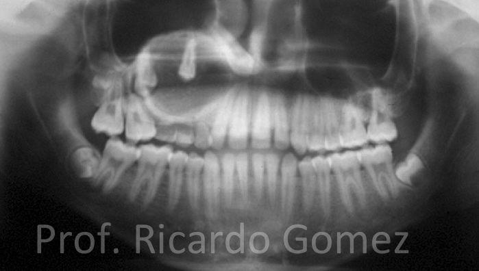 Tumor odontogênico adenomatóide