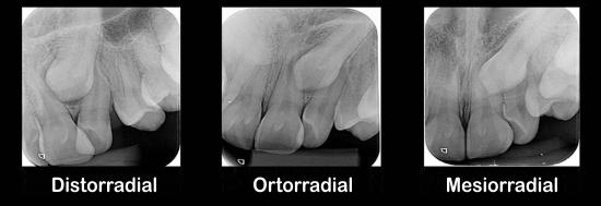Método de Clark: localização de dentes inclusos