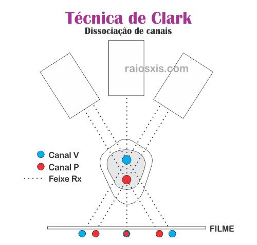 Técnica de Clark