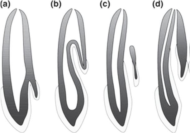Tipos de dens in dente segundo Oehlers