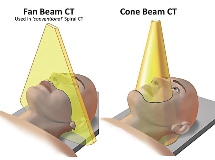 Cone Beam X Fan Beam