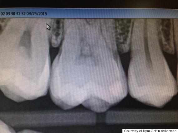 Imagem de Jesus na radiografia de um dente